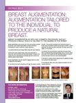 Breast augmentation: augmentation tailored to the individual to produce a natural breast image #2
