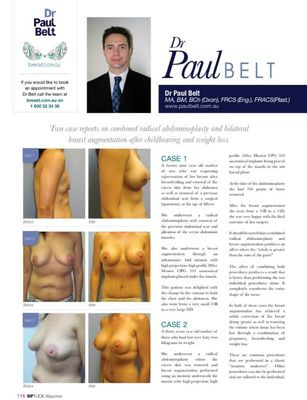 Nip Tuck Magazine July 2013 - Bilateral breast augmentation after childbearing and weight loss